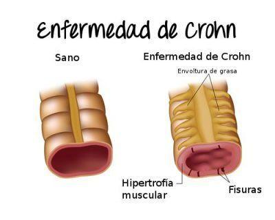 aloe vera en la enfermedad de crohn