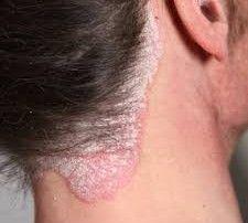 psoriasis aloe vera